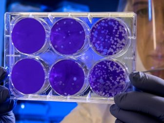 Scientist looks at a set of petri dishes